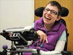 پاورپوینت-فلج-مغزی-(cerebral-palsy)