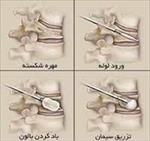 تحقیق-سيمان-استخوان-(سمينار-درس-كامپوزيت)