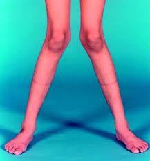 راشیتیسم یا نرمی استخوان