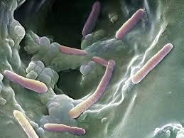 تحقیق بررسی اشریشیا کولی اشریشیا کولی Escherichia coli